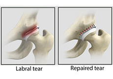 Hip Labral Repair