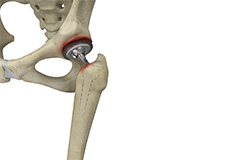 Periprosthetic Hip Infection