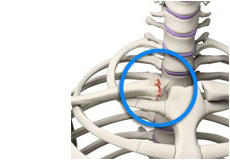 SC Joint Injury Reconstruction